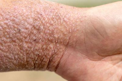 身体出现什么症状是银屑病性关节炎